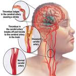 Tai biến mạch máu não - Chuẩn đoán,đánh giá và điều trị
